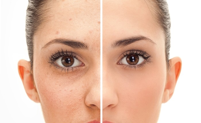 Acnes - 12 Reasons Why Sugar Is Bad and You Should Avoid It at Any Cost