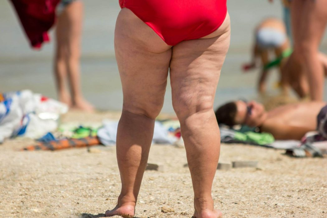 Why Do Women Gain Fat On Their Thighs